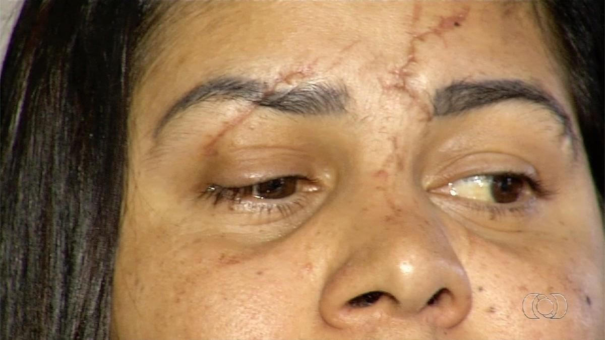 Dona de casa diz que ficou cega de um olho após agressão do namorado, em Anápolis