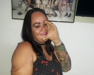 geziane-teve-as-maos-decepadas-pelo-marido-e-ganhou-proteses-1581620515780_v2_450x600